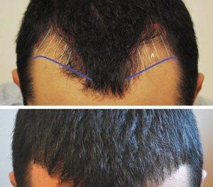 تقنيات زراعة الشعر تركيا