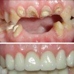 عمليات تجميل الاسنان تركيا